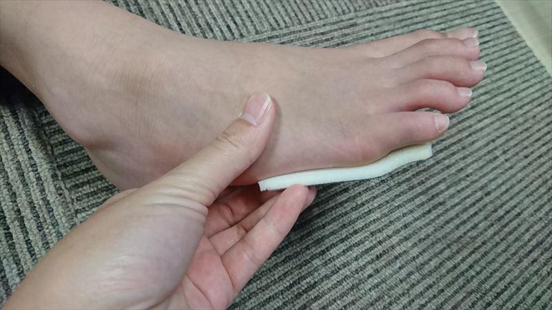 足の指 骨折 ヒビ 打撲